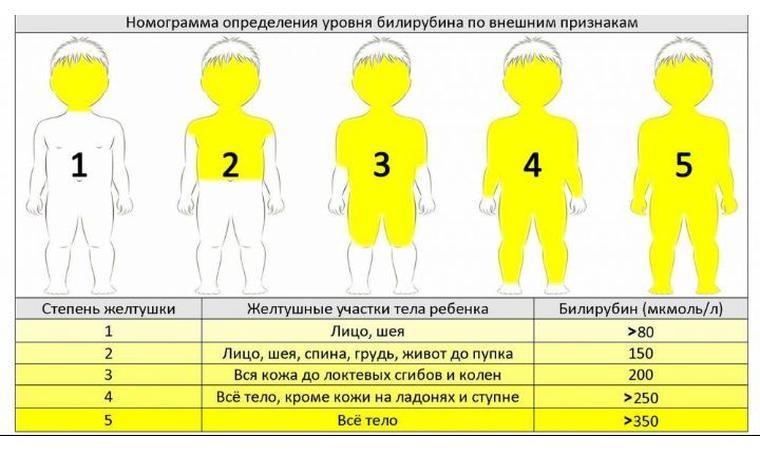 желтуха у новорожденных норма билирубина