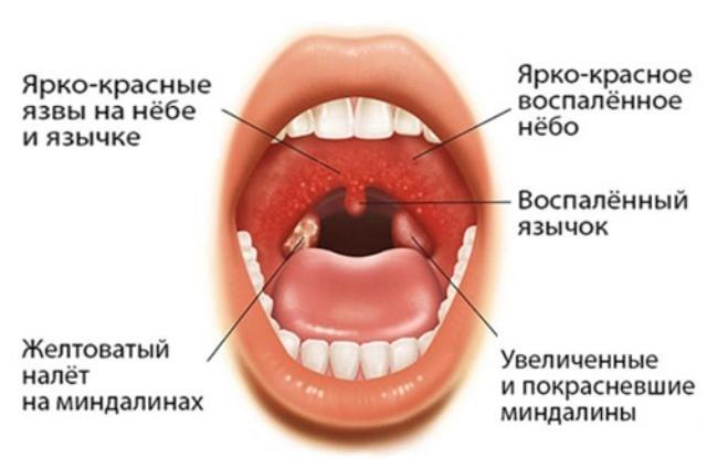 инфекционный мононуклеоз у детей фото